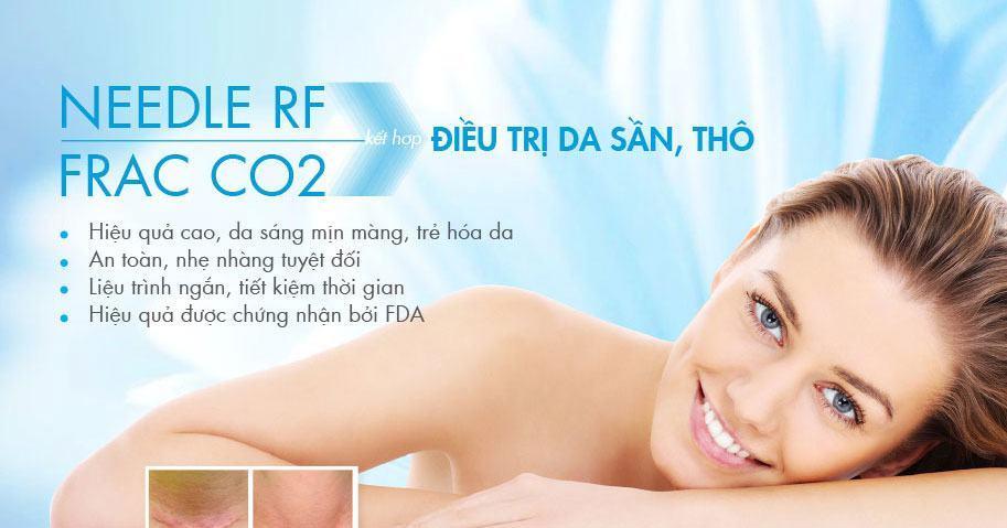 Da mặt sần thô - Điều trị với công nghệ Needle RF từ Hoa Kỳ