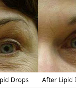 duoc-my-pham-cosmedical-usa-lipiddrops-b-1