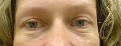 duoc-my-pham-cosmedical-eye-ultra_before