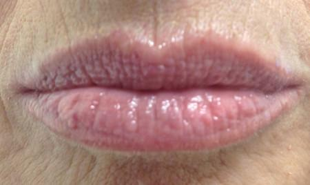 duoc-my-pham-cosmedical-usa-lip-after-4