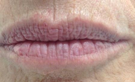 duoc-my-pham-cosmedical-usa-lip-before-3