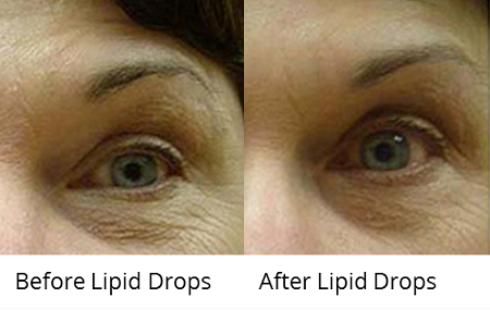 duoc-my-pham-cosmedical-usa-lipiddrops-1