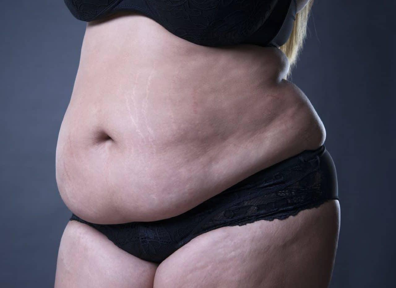 Đây là tình trạng béo bụng dưới thường gặp phải ở chị em phụ nữ nhất là sau khi sinh