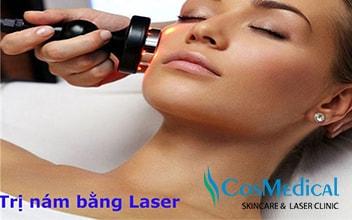 Thực hư việc trị nám da bằng Laser? Lời khuyên của bác sĩ