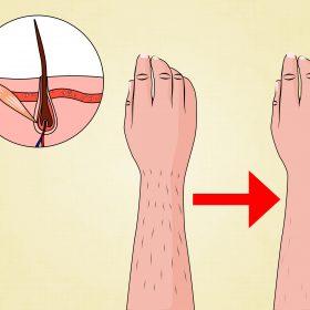 Có cách nào triệt lông không đau mà hiệu quả cao?