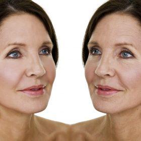 Nâng cơ mặt không phẫu thuật bằng rada vàng quang xung kích thực chất là gì?