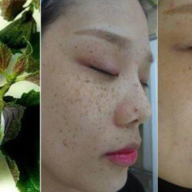 Cách điều trị nám da hiệu quả từ lá tía tô,7 ngày nám mờ hẳn, bạn đã thử chưa?