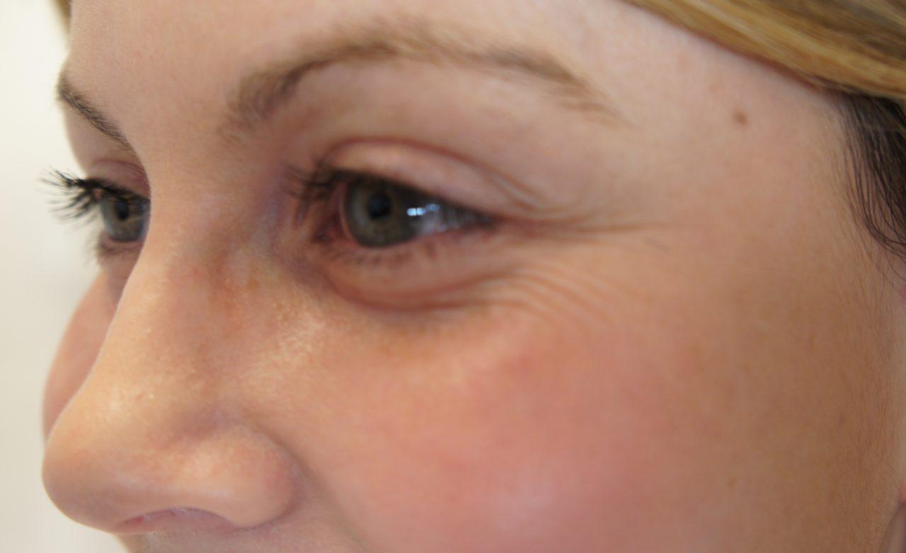 Nhăn da vùng mắt là hiện tượng gì? Đâu là nguyên nhân gây nhăn da vùng mắt