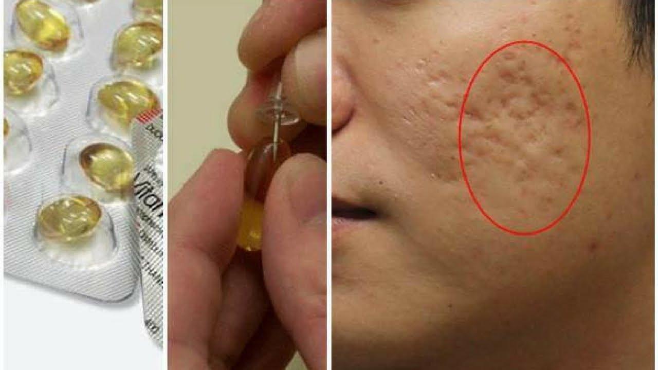 thời khắc vàng khi điều trị sẹo rỗ