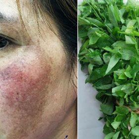 Cách làm mờ nám da bằng rau ngót, hiệu quả bất ngờ sau 7 ngày