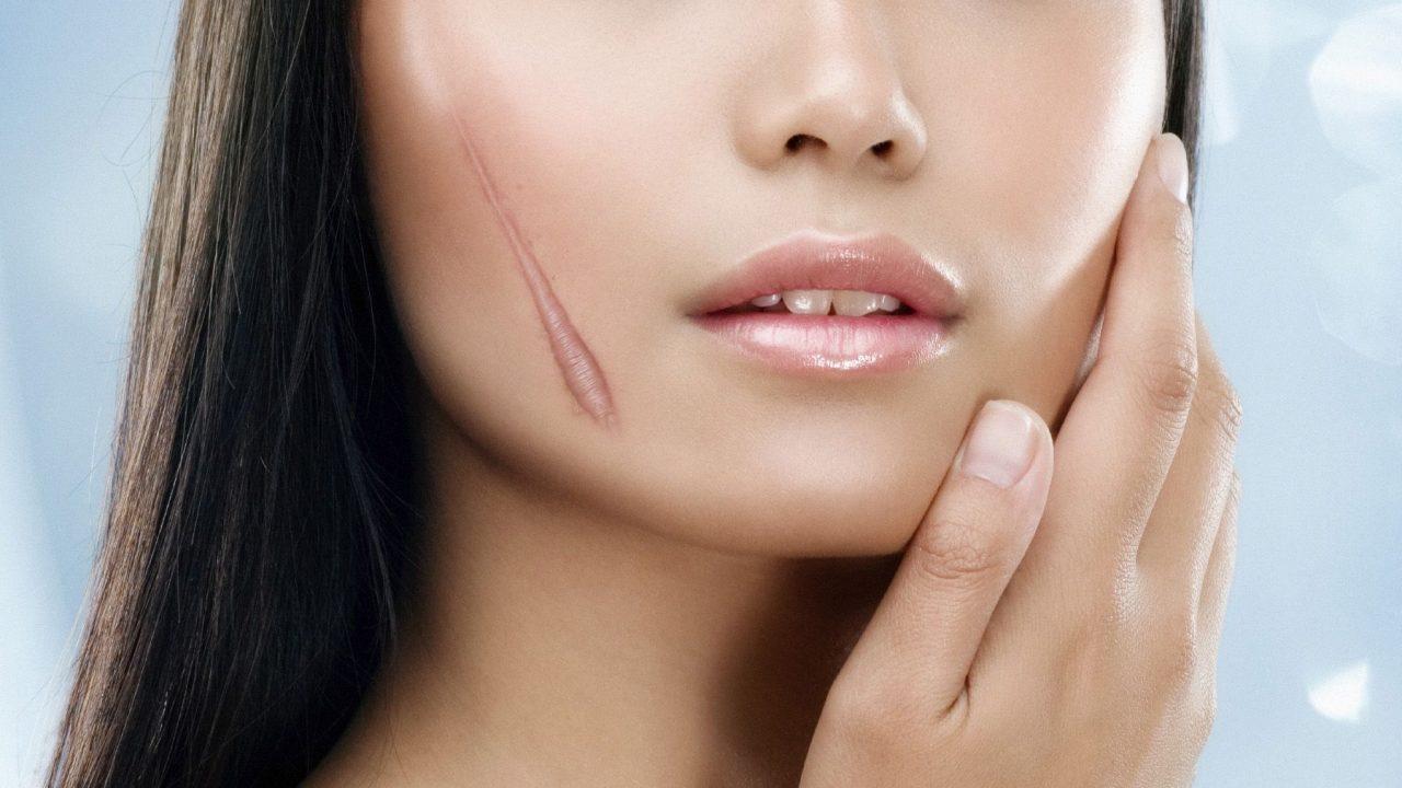 """Thời khắc """"vàng"""" cần nhớ để phòng ngừa và điều trị sẹo rỗ hiệu quả"""