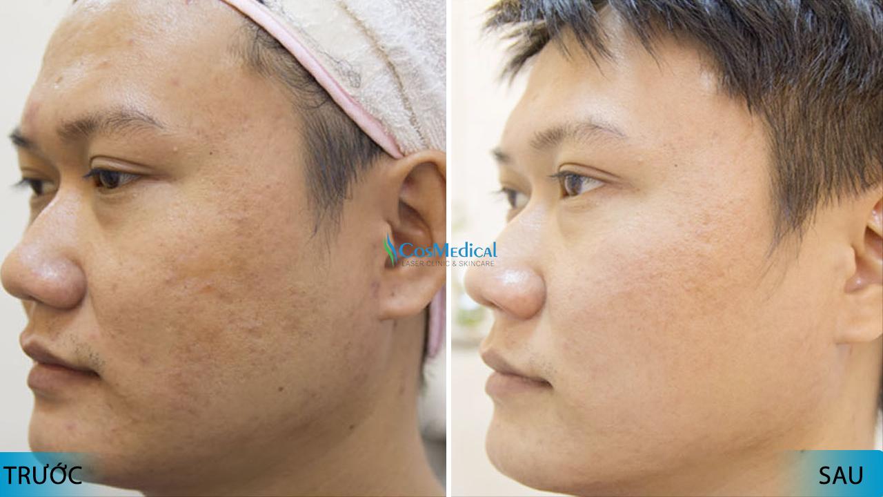 thời khắc vàng khi điều trị sẹo rỗ bằng laser