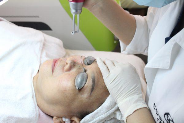 Điều trị nám da công nghệ laser có khỏi vĩnh viễn không?