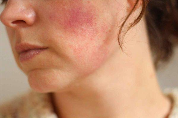 Da mỏng, nhạy cảm có nên điều trị nám da công nghệ  laser toning hay không?