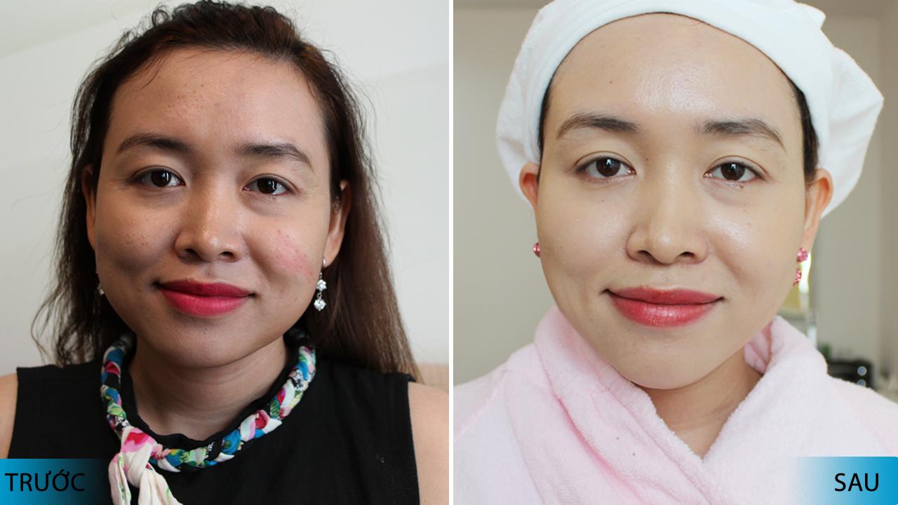 hiệu quả trước và sau khi điều trị