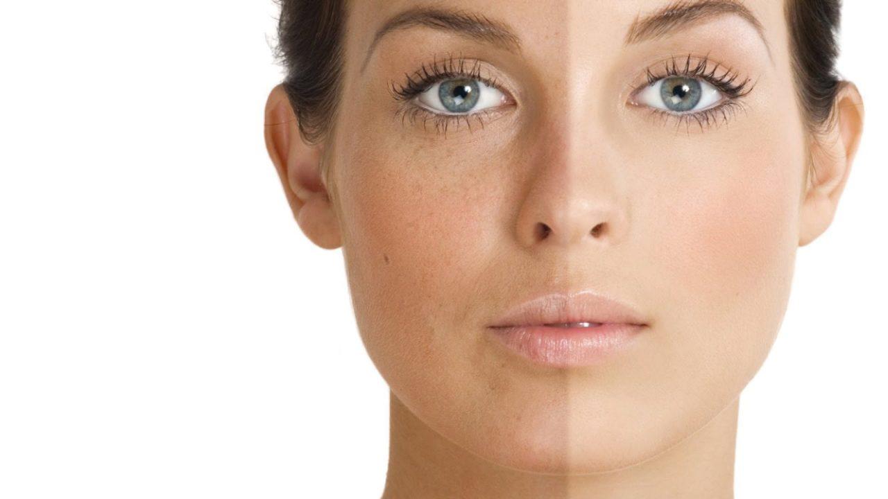 nám da mặt và các điều trị thiên có hiệu quả