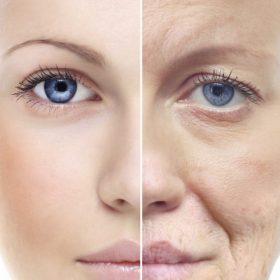 Nâng cơ mặt không phẫu thuật nghỉ dưỡng có lâu không, Thời gian hồi phục bao lâu?