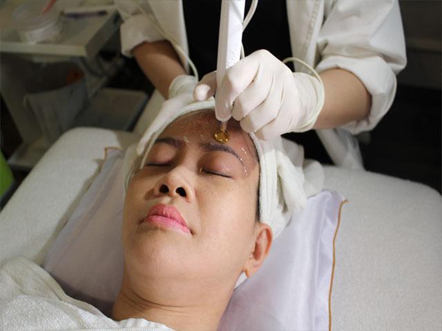 50 tuổi xóa nếp nhăn bằng công nghệ trẻ hóa da của Mỹ