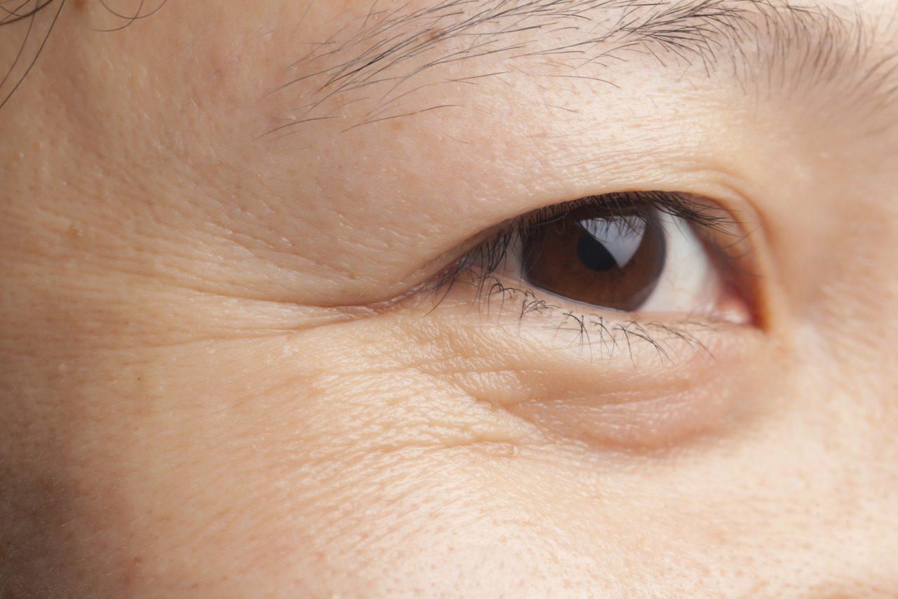 cách làm mờ nếp nhăn với đuôi mắt