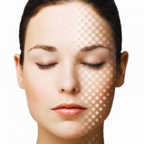 """Thời khắc """"vàng"""" để phòng ngừa và điều trị sẹo rỗ hiệu quả"""