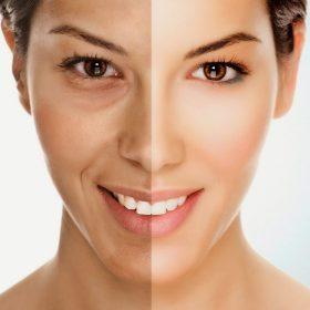 Trẻ hóa da mùa cuối năm - Có phải là thời điểm thích hợp?