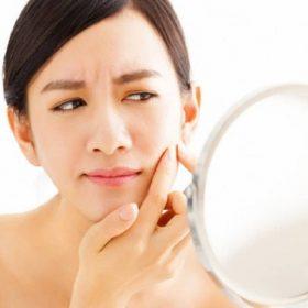 Có cách nào trị mụn hiệu quả mà không gây khô da?