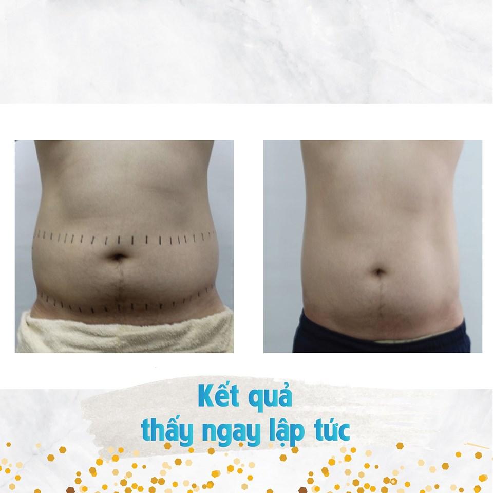 hiệu quả giảm béo bụng tại spa