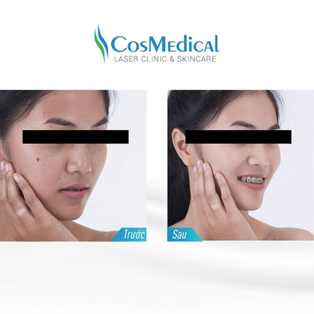 Trước và sau khi làm trắng sáng da mặt tại trung tâm làm đẹp CosMedical Clinic
