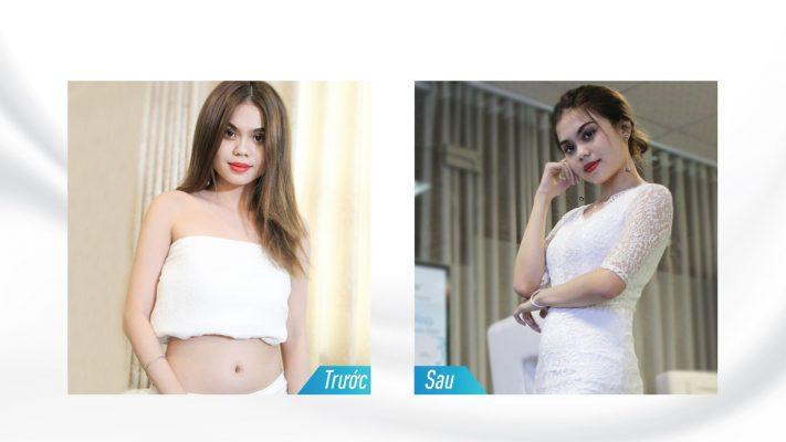 Hình trước sau giảm béo toàn thân