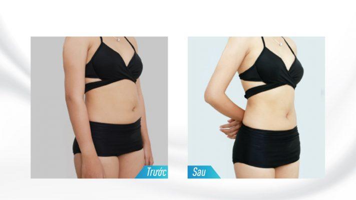 hình ảnh trước sau giảm béo toàn thân