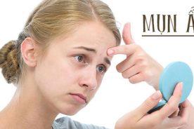 Hướng dẫn cách phòng ngừa và điều trị mụn ẩn hiệu quả