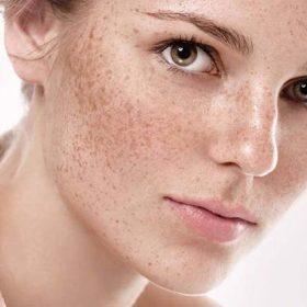Nguyên tắc điều trị nám da dành cho phụ nữ tuổi 30