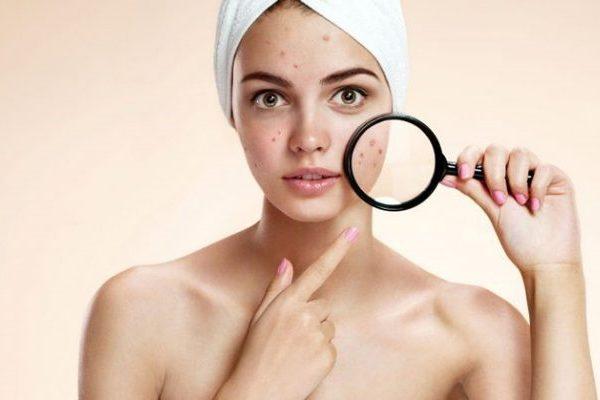 Chăm sóc da ra sao để ngăn mụn tái phát trở lại?