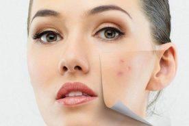 Sẹo mụn- Nguyên nhân và cách điều trị dứt điểm