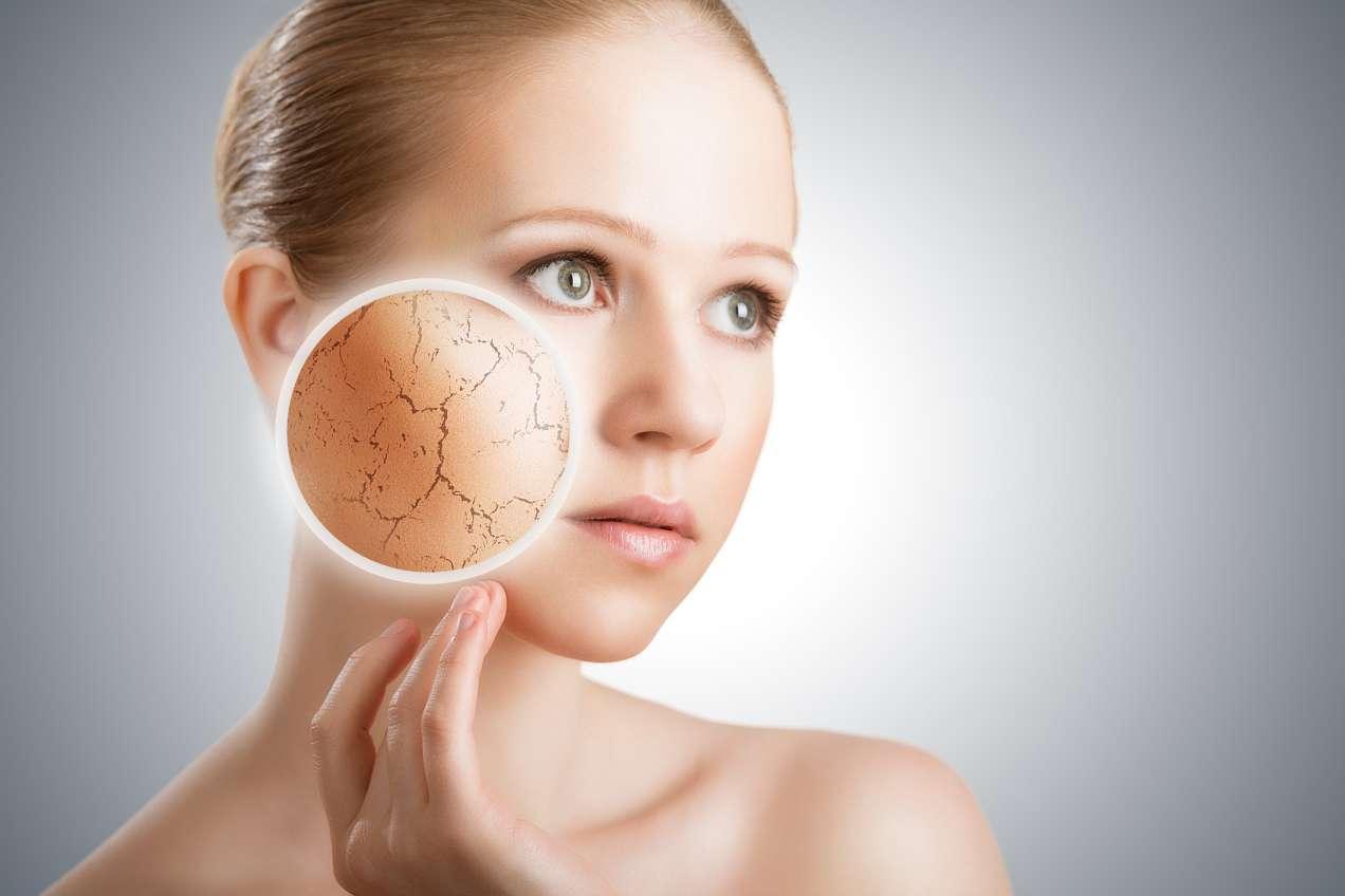 Da khô - Nguyên nhân và cách khắc phục hiệu quả