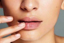 """Những lý do """"vô tình"""" khiến môi ngày càng thâm mà bạn không ngờ tới"""