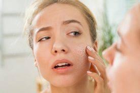 4 điều cấm kỵ khi chăm sóc làn da khô