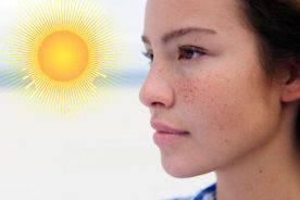 Chống nắng khi điều trị nám - Có thật sự cần thiết?