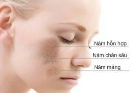 Cách nào điều trị hiệu quả cho từng loại nám da?