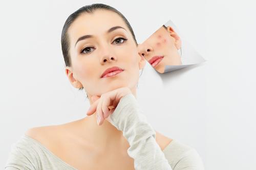 Chia sẻ cách chăm sóc da sau điều trị mụn bằng Laser
