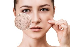 Mẹo dưỡng ẩm cho da khô và mất nước